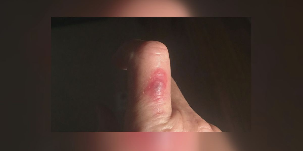 Woman says she was treated for flesh eating bacteria after saving a bird at beach closed due a no swim advisory