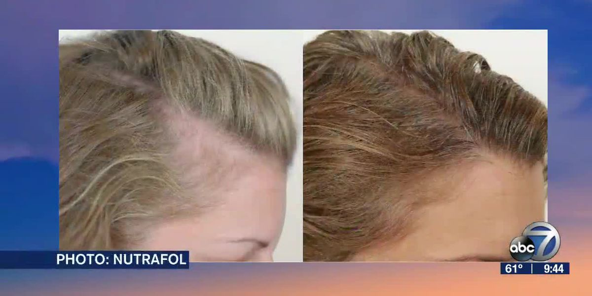 We Learn How to Prevent Hair Loss with Nutrafol | Suncoast View