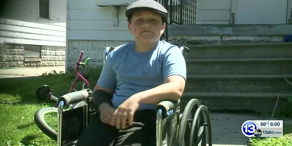 GRAPHIC: Boy, 12, recovers after attack by pit bull in Ohio