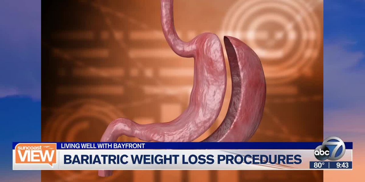 Living Well with Bayfront: Bariatric weight loss procedures | Suncoast View