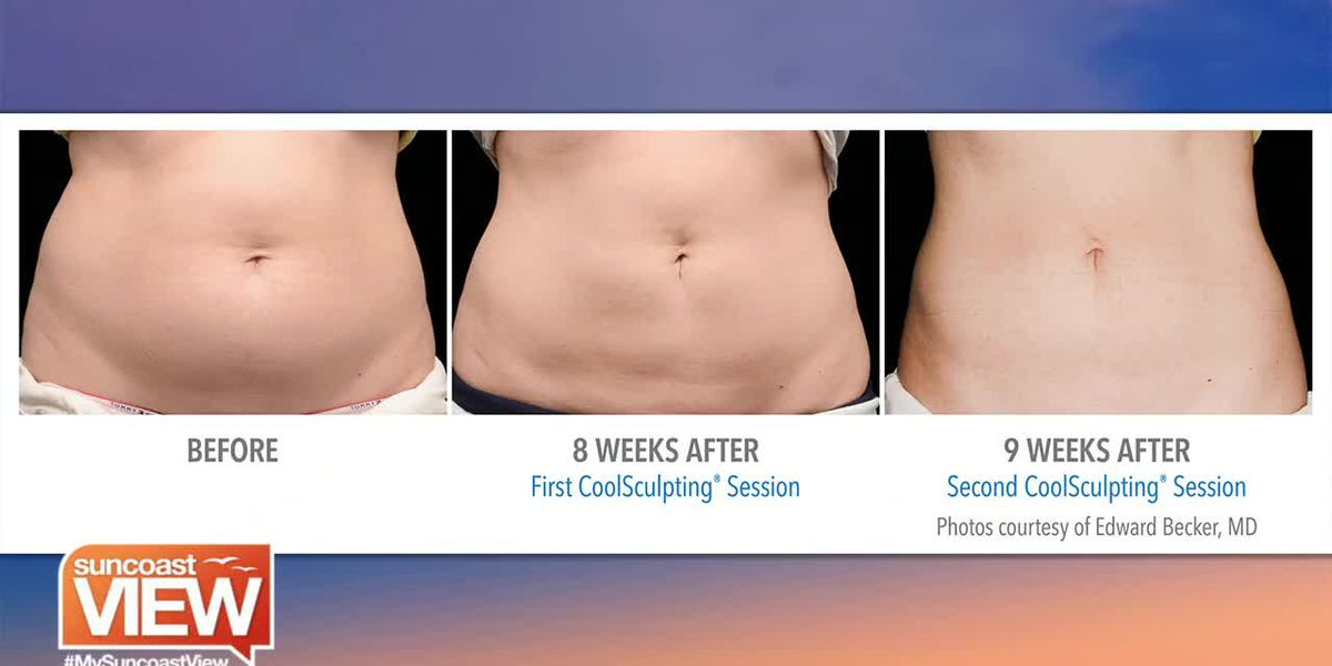 Abdomen CoolSculpting with Point Lumineux | Suncoast View
