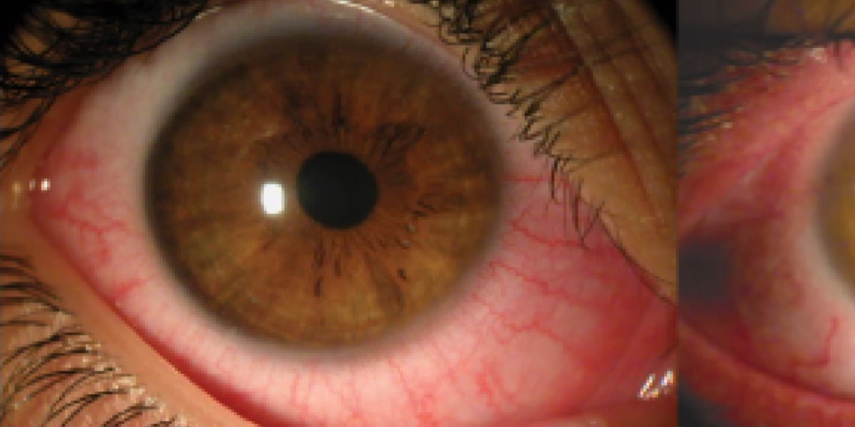 Pink Eye Cases Rise on the Suncoast